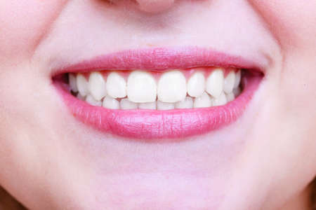 Young woman with healthy teeth. Dental care