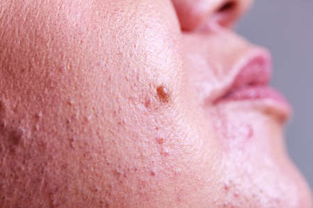 Skin after laser removing unwanted hair from face. Detail view. Epilation and cosmetology procedure.