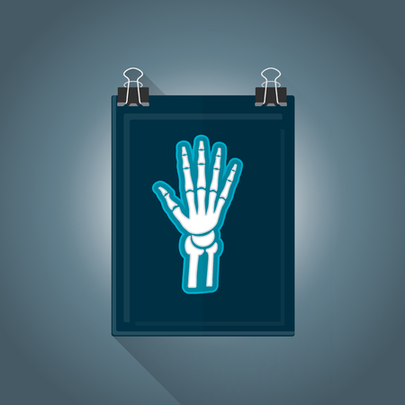 radiography: vector colored flat design x-ray radiography hand picture illustration isolated dark background long shadow Illustration