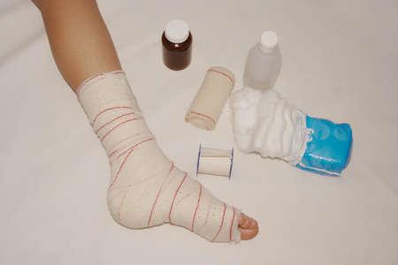 Sprain leg photo