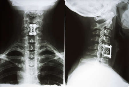 X-ray of a surgical operation on the cervical vertebrae Stok Fotoğraf