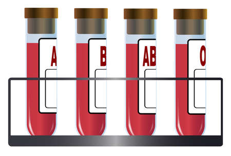 Una colección de cuatro tubos de ensayo en un metal estante de cada uno con un grupo bliid humano particular