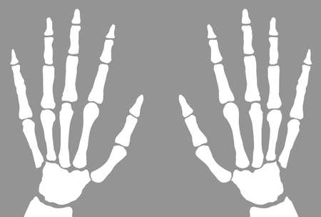 xray: The bones of the hand x-ray isolated on a white background Illustration