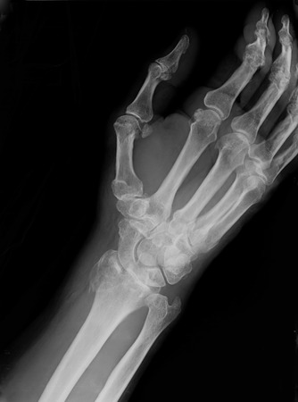 synthetic: Xray imaging of epiphysial radial fracture of wrist reduced with permanent synthetic means