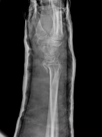 Xray imaging of epiphysial radial fracture of wrist reduced with permanent synthetic means photo