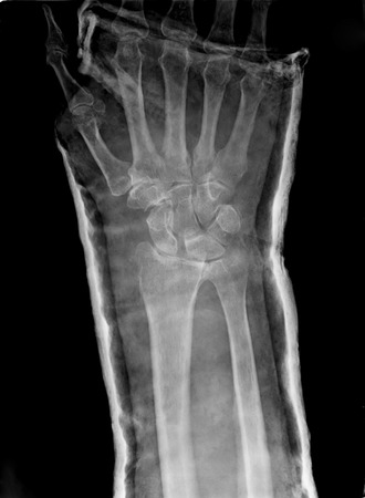 reduced: Xray imaging of epiphysial radial fracture of wrist reduced with permanent synthetic means