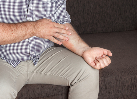 eczema: Man scratching an eczema on his hands, medical concept Stock Photo