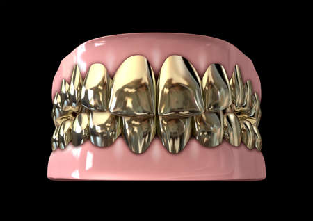 molar: A closed set of golden human teeth set in gums on a dark background
