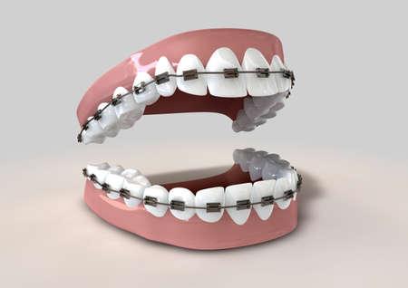 ortodoncia: Un parted conjunto de dientes humanos con los apoyos metálicos provistos establecido en las encías sobre un fondo claro