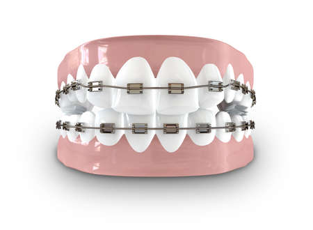 orthodontics: Un conjunto cerrado de dientes humanos con tirantes met�licos provistos establecido en las enc�as en un fondo aislado Foto de archivo