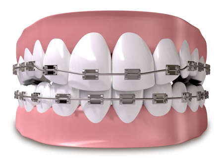A closed set of human teeth with metal braces fitted set in gums on an isolated background photo