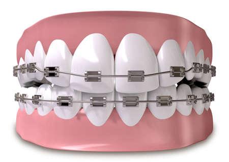 Un conjunto cerrado de dientes humanos con tirantes metálicos provistos establecido en las encías en un fondo aislado