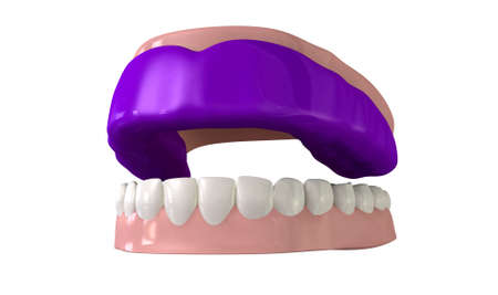 A perspective view of a regular blue sports gum guard fitted to a set of open false teeth on an isolated background