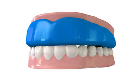 incisor: A perspective view of a regular blue sports gum guard fitted to a set of closed false teeth on an isolated background