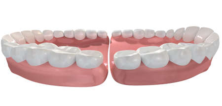 agape: An extreme closeup of a set of open false human teeth set in pink gums on an isolated background