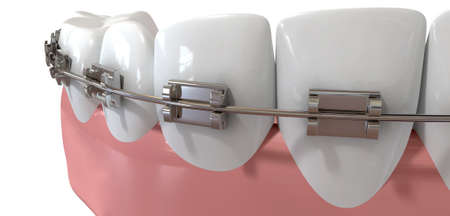 false teeth: An extreme closeup of a set of false human teeth with a set of metal orthodontic braces on an isolated background