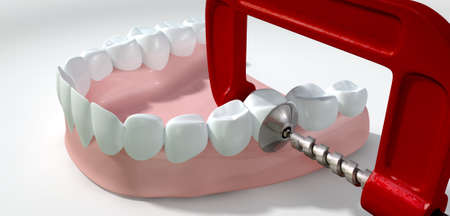 clamps: A toothache concept showing a single tooth being squeezed by a red and metal clamp on an isolated white studio shot Stock Photo