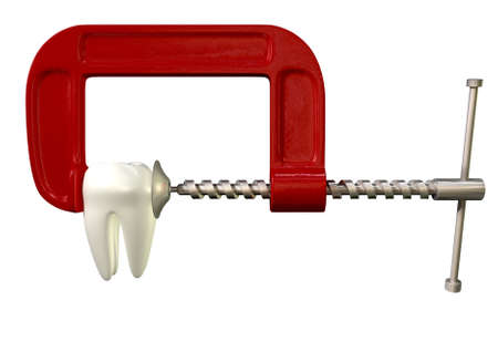 decayed: A toothache concept showing a single tooth being squeezed by a red and metal clamp on an isolated white studio shot Stock Photo