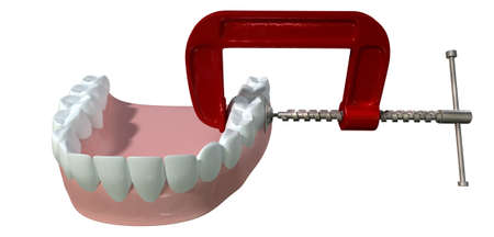 squeezed: A toothache concept showing a single tooth being squeezed by a red and metal clamp on an isolated white studio shot Stock Photo