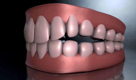 seperated: A sinister dramatic depiction of seperated upper and lower sets of human teeth set in gums on a dark eerie spotlit background