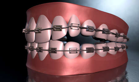 seperated: A sinister dramatic depiction of seperated upper and lower sets of human teeth with braces applied to them on a dark eerie spotlit background