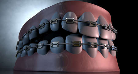 lower teeth: A sinister dramatic depiction of seperated upper and lower sets of human teeth with braces applied to them on a dark eerie spotlit background