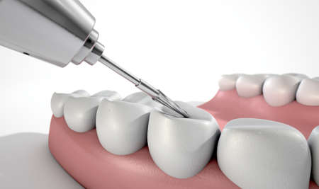 incisor: A closeup of a steel dentists drill performing an examination on a set of false teeth on an isolated studio background