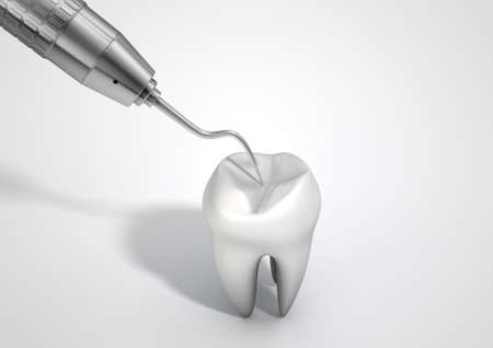 incisor: A closeup of a steel dentists hook probe performing an examination on a single  tooth on an isolated studio background Stock Photo