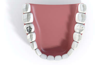 cavity: A lead cavity filling on one molar in a set of false human teeth set in gums with on an isolated background