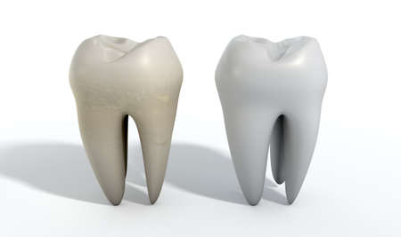 odontology: A comparison between a stained dirty tooth and a clean white tooth on an isolated studio background