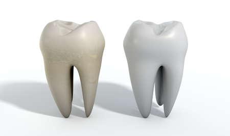 dientes sucios: Una comparación entre un diente sucio manchado y un diente limpio blanco sobre un fondo de estudio aislado