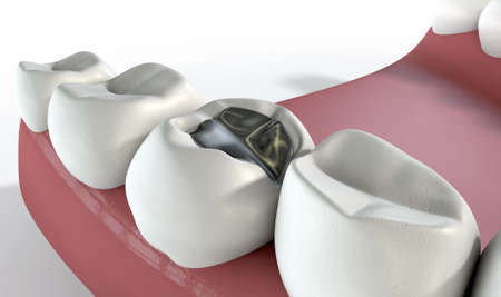 A lead cavity filling on one molar in a set of false human teeth set in gums with on an isolated background