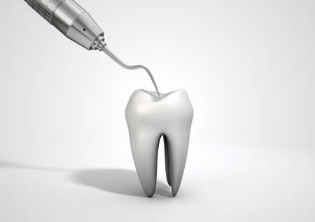 dental fear: A closeup of a steel dentists hook probe performing an examination on a single  tooth on an isolated studio background Stock Photo