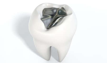 dientes con caries: Una cavidad de llenado de plomo en un solo molar en un fondo aislado Foto de archivo