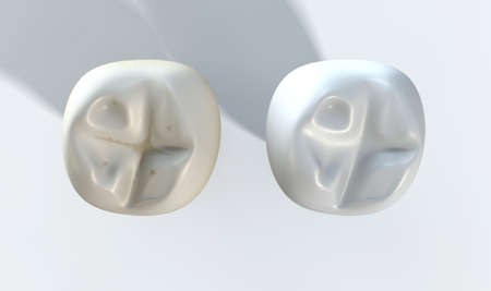 dirty teeth: A comparison between a stained dirty tooth and a clean white tooth on an isolated studio background