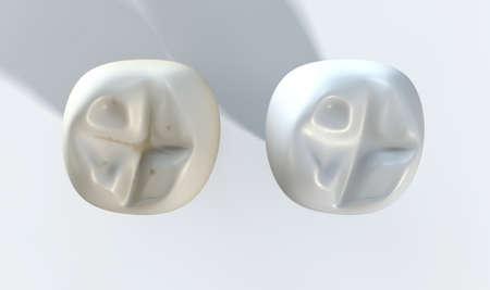 dientes sucios: Una comparaci�n entre un diente sucio manchado y un diente limpio blanco sobre un fondo de estudio aislado