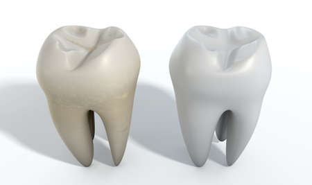in differentiation: A comparison between a stained dirty tooth and a clean white tooth on an isolated studio background