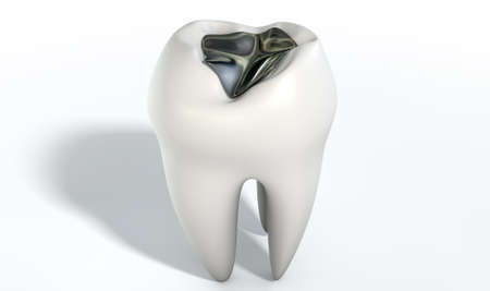 cavity: A lead cavity filling on a single molar on an isolated
