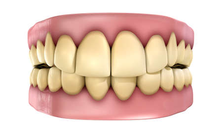 A set of yellow and unkempt false teeth on an isolated white studio background
