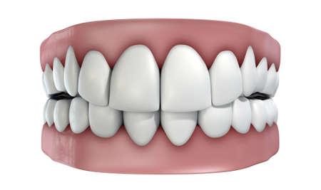 false teeth: A set of false teeth on an isolated white studio background