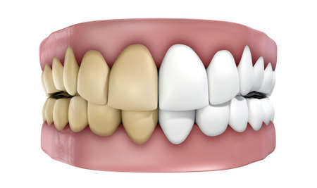 A set of false teeth with half clean and white and the other yellowed and stained on an isolated white studio background