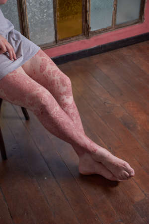 View of leg and feet of woman with Psoriasis
