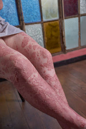 View of thigh knee and leg of woman with Psoriasis 版權商用圖片