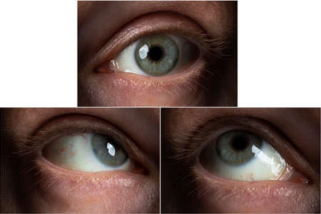 the eye of an adult male in three different positions (with a view to the top) Banque d'images