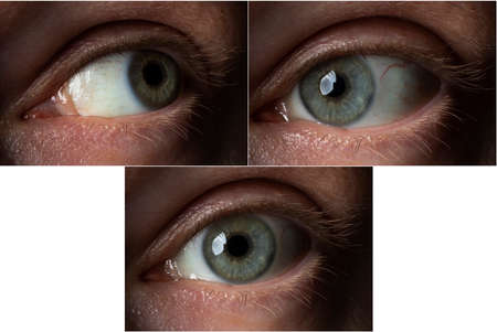 the eye of an adult male in three different positions (with a side view) Banque d'images