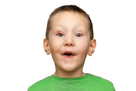 Surprised child open his mouth isolated on a white background. Physical injury blood wound skin human child pain Standard-Bild - 133608080
