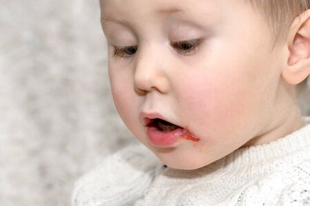 Acute herpetic stomatitis in children is an infectious viral disease caused by primary contact with the herpes simplex virus.