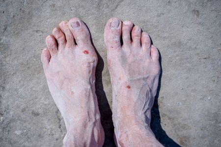 Bare feet of men in the pink salt lake. Salt Deposit. Treatment of wounds with salt. Healing properties of salt.