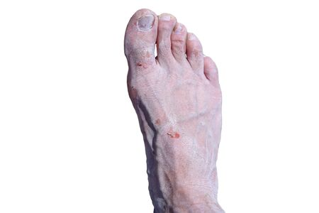 Salt Deposit. Treatment of wounds with salt. Healing properties of salt. Bare feet of men isolated on white background Reklamní fotografie