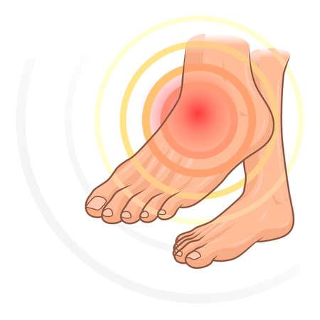 Ból stóp Ilustracje wektorowe